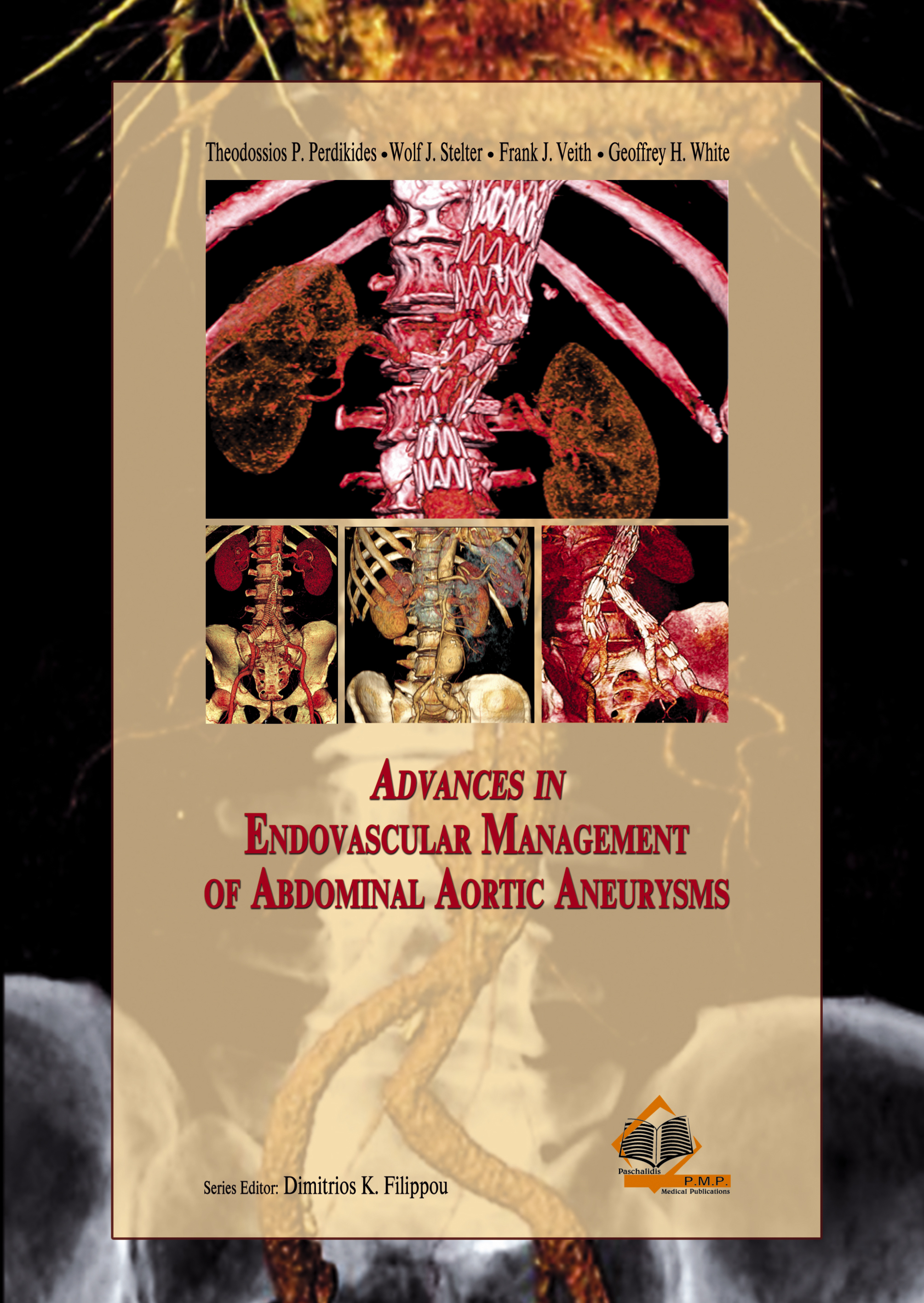 Advances in Endovascular Management of Abdominal Aortic Aneurysms