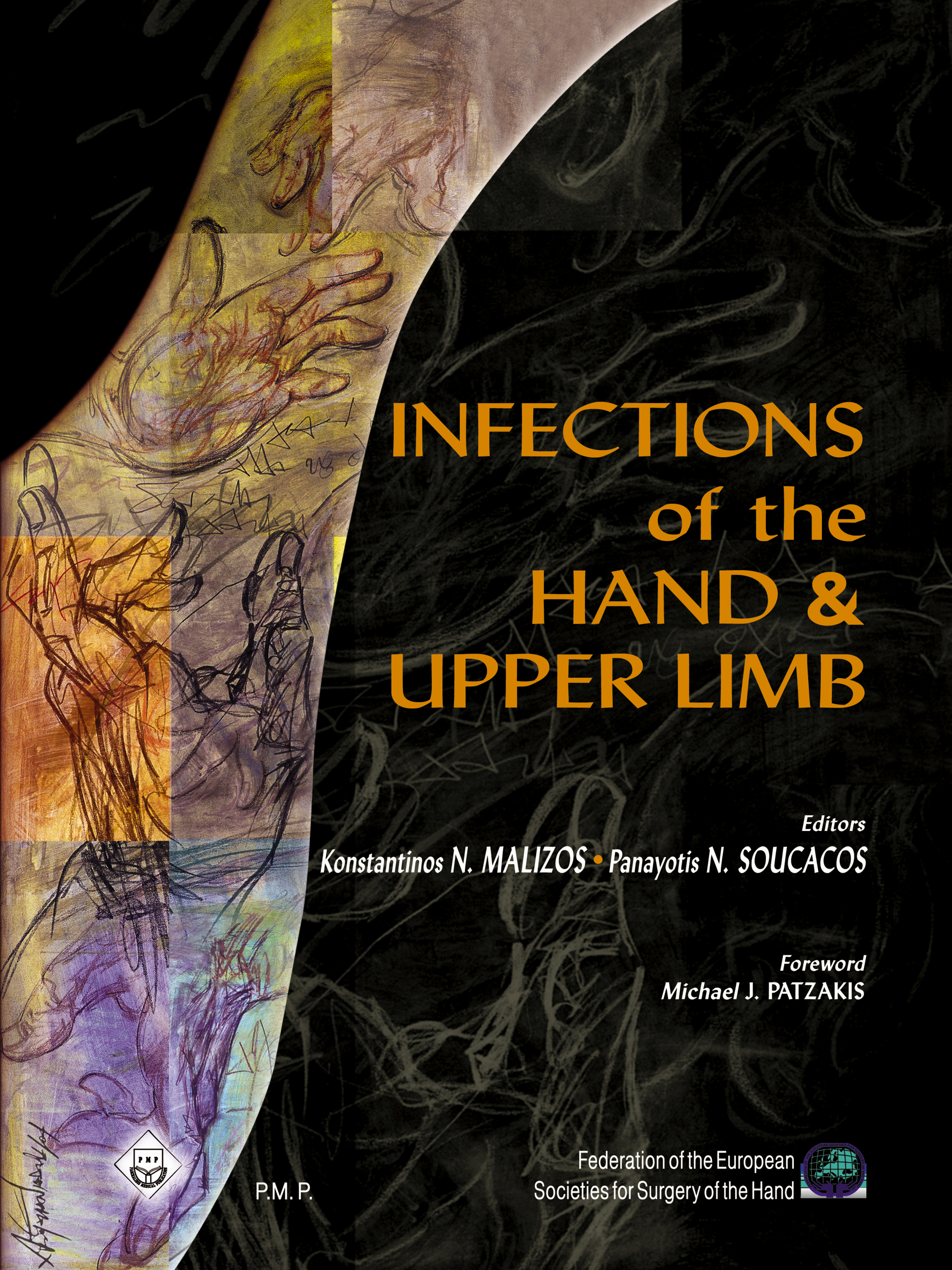 Infections of the Hand & Upper Limb